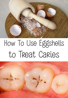 Treat Caries - How To Use Eggshells to Treat Caries