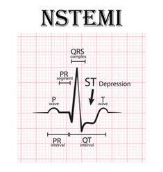 Ecg of st elevation myocardial infarction stemi Vector Image Cardiac Nursing, Nursing Mnemonics, Pathophysiology Nursing, Nursing Information, Critical Care Nursing, Nursing School Notes, Medical Coding, Medical Careers, Nursing
