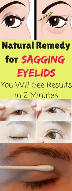 Natural Remedy for Sagging Eyelids – You Will See Results in 2 Minutes – WesternRecipes