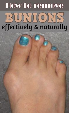 how to get rid of bunions the natural way