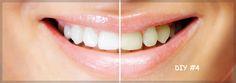 Λευκό χαμόγελο