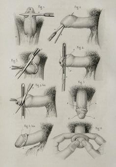 1857 Antique bizarre print of HUMAN ANATOMY. UROLOGY. Human Pennis. Surgery…