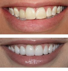 A Cosmetic dentist will also provide restorative benefits. For example, dental fillings are a routine procedure used to treat decayed teeth Teeth Bonding, Dental Bonding, Veneers Teeth, Dental Veneers, Perfect Teeth, Perfect Smile, Teeth Makeover, Cosmetic Dentistry Procedures, Dental Fillings
