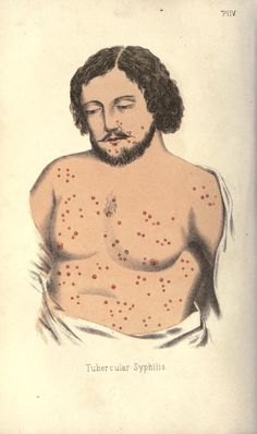 """Tubercular Syphilis"" From: A treatise on gonorrhoea and Syphilis, 1867."