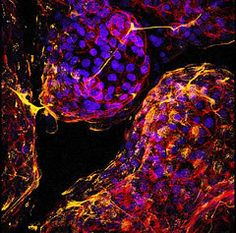 This is a confocal microscopic image of a 3-D lung cell culture labeled with various markers for cell differentiation