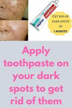Apply toothpaste on your dark spots to get rid of them Today I will share an amazing beauty hack with toothpaste. Just apply toothpaste on your dark spots and see the magic. Toothpaste is not only used for teeth, it can be used on your skin also to remove all skin problems like blemishes, acne, dark spots and wrinkles. It also lightens the pigmentation of your skin thus giving … #DailyFaceCare Sun Spots On Skin, Black Spots On Face, Brown Spots On Hands, Dark Spots, Beauty Hacks With Toothpaste, Spots On Forehead, Sunspots On Face, How To Remove, How To Apply