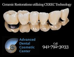 Did you know...  The Advanced Dental Cosmetic Center and Dr. Alford  has provided more Ceramic Restorations utilizing CEREC Technology with Mr. Eddie Correlas than any other dentist in the US.