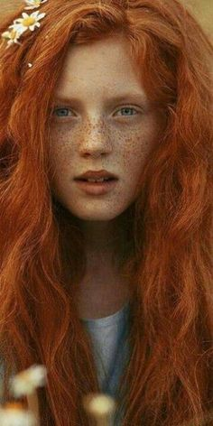 ourcolorfulseoul:  (via (1) Love Redheads with Freckles | I see red people! | Pinterest)