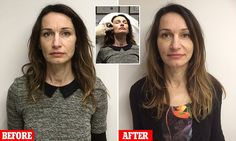 Look 10 years younger WITHOUT going under the knife: Mother, 47, tries the 8-point fillers facelift promising to rejuvenate skin in just 30 minutes - with impressive results