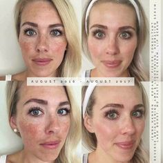 Rodan + Fields gives you the best skin of your life and the confidence that comes with it. Created by Stanford-trained Dermatologists, we understand skin. Our easy-to-use Regimens take the guesswork out of skincare so you can see transformative results. Nu Skin, Love Your Skin, Good Skin, Serum, Rodan And Fields Reverse, Reverse Aging, Uneven Skin Tone, Jena, Skin Care Regimen