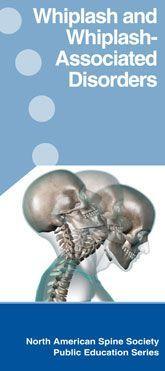 Whiplash...facet joint pain