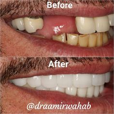 Before and after: just finished this reconstruction that included 9 dental implants and 20 crowns. Patient was ecstatic with esthetics and even more excited about function now that he could eat properly again  310 362 3833  drwahab@unforgettablesmile.com  4 months start to finish  Master ceramist on site to perfect esthetics  Sleep dentistry available so you don't have to experience any pain  $1500 to $2000 per tooth  Financing options available #beverlyhills #cosmeticdentistry…