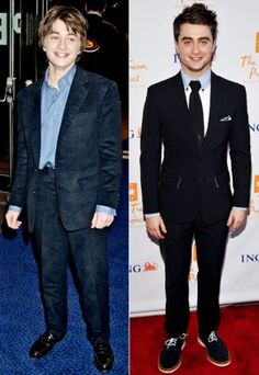 Harry. Before & After. Wow.
