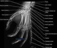 Radiography - Mano - Dedos de la mano : Huesos del metacarpo [I-V],  Huesos de los dedos; Falanges,  Falange proximal,  Falange media,  Falange distal,  Huesos sesamoideos, Articulaciones carpometacarpianas,  Articulaciones intermetacarpianas,  Articulaciones metacarpofalángicas,  Artículaciones interfalángicas