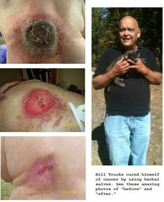 This testimonial is for informational purposes only. Please read over all information in the websites below and then read the books to fully inform yourself before attempting to use black salve for…