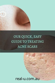Learn how to minimise scarring and experience clear, healthy skin.
