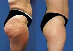 Many people are trying to lose weight in order to lose cellulite. While it is possible to reduce cellulite while you are trying to lose fat the extent of i Calendula Benefits, Matcha Benefits, Coconut Health Benefits, Nu Skin, Cellulite Remedies, Cellulite Scrub, Anti Cellulite, Cellulite Workout, Reduce Cellulite