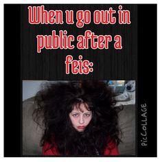 Irish dancer problems: Post wig hair
