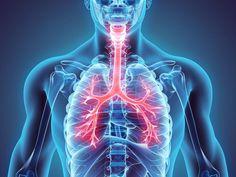 Se trata de una inflamación severa de las paredes de los bronquiolos. Es un tipo de neumonía, pero de naturaleza aguda y garantiza un tipo diferente de tratamiento médico.