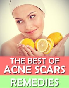 While one remedy could be beneficial to one, it could also have different effect on another  type of skin. Here are some of the Best Acne Scars Remedies. Check out which one is the best for your skin. #skin #acne #remedies #scars
