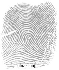 fingerprints anatomy Welcome to online mri & ct sectional anatomy online mri & ct sectional anatomy (omcsa k-anatomy) is probably one of the most user-friendly and convenient online interface for human anatomy atlas.