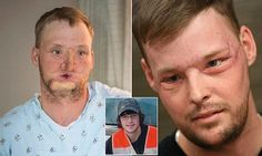 Face transplant recipient hails staggering results of procedure