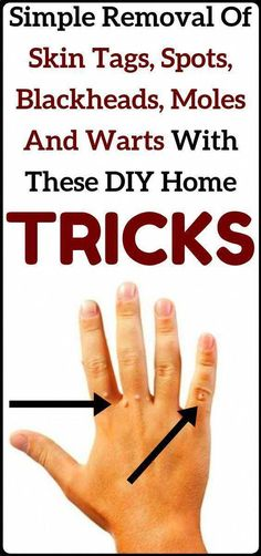 Say goodbye to skin tags, moles, blackheads and warts with these home DIY tricks. Say goodbye to skin tags, moles, blackheads and warts with these home DIY tricks. Natural Health Remedies, Natural Cures, Natural Healing, Herbal Remedies, Natural Treatments, Cold Remedies, Natural Oil, Bloating Remedies, Natural Foods