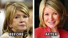 Celebrities On Firmativ Anti-Aging Treament