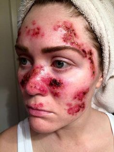 Una mujer con cáncer de piel comparte una chocante imagen para fomentar la protección - Yahoo Noticias