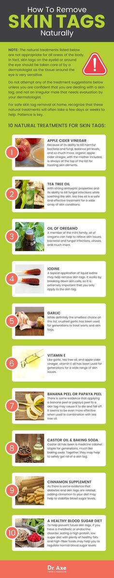 How to remove skin tags: 10 ways http://www.draxe.com #health #holistic #natural