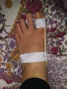 Sewed a bunion splint with elastic and popsicle sticks [FO] - sewing Bunion Exercises, Foot Exercises, Health And Fitness Apps, Health Tips, Bunion Remedies, Bunion Pads, Bunion Relief, Feet Treatment, Kinesiology Taping