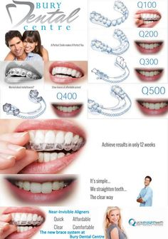 Quick straight teeth is a revolution on the clear aligner system to straighten your teeth quickly. 6 Month Braces, Snap On Smile, Braces Cost, Invisible Braces, Clear Aligners, Teeth Straightening, Porcelain Veneers, Gum Health, Dental Center