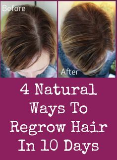 4 Natural Ways To Regrow Hair In 10 Days ~ http://positivemed.com/2015/02/24/4-natural-ways-to-regrow-hair-in-10-days/
