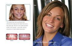 Before and after treatment results with Damon System Braces  18 months of treatment time and only 11 appointments!