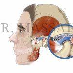 La Gnatologia e la cura della masticazione