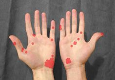Effective Natural Home Treatments For Burns On Hands