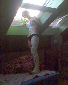 https://flic.kr/p/dSDjYH | Hip Spica | My leg in a cast. I look sexy, is not it?