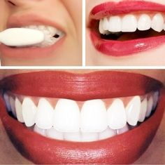 Dr. Oz Teeth Whitening Home Remedy:  1/4 cup of baking soda   lemon juice from half of a lemon. Apply with cotton ball or q-tip. Leave on fo...