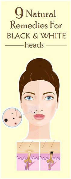 Difference B/w a black and a white head is simply whether or not the pore is open or closed. If the pore is open, the plug of sebum/skin cells oxidizes as it is in contact with the oxygen in the air, which turns it black. Blackheads are not caused by dirt. Let's make that clear …