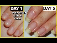 How to GROW NAILS FASTER (Results in LIVE Video), 100% WORKING ✔✔ - YouTube