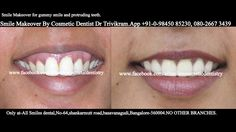 Dr Trivikram (Dr Vikram),an expert cosmetic dentist in Bangalore.He comes with extensive international training from the United Kingdom.Now, You don't have to settle for unattractive smile any more. Crowded teeth, chipped, stained, crooked teeth or gaps between teeth can be corrected without any braces/clips in 7-10 days. ALLSMILES -only at - N0.64, SHANKAR MUTT MAIN ROAD BASAVANAGUDI.(no other branches). PH +91-0- 98450 85230.080-26673439.More at…