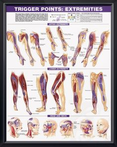 Trigger Points Set anatomy poster two posters show trigger point locations with primary and secondary pain sensitive zones of muscles. Muscles chart for doctors and nurses.