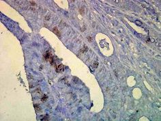 Human colon tissue stained (brown) in inflammatory cells. Shown at a dilution. Heat Shock Protein, Thing 1, History, Image, Brown, History Books, Historia, Browning, Brow