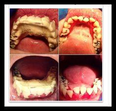 Dentaltown - Do you love to remove calculus? Dental Jobs, Dental Hygiene School, Dental Facts, Dental Humor, Dental Hygienist, Dental Assistant, Oral Hygiene, Dental World, Dental Life
