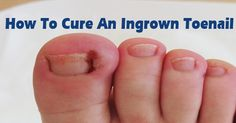 1000 Images About Ingrown Toenails On Pinterest