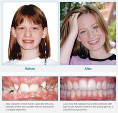 Orthodontic Braces | Why Choose Damon | Damon System
