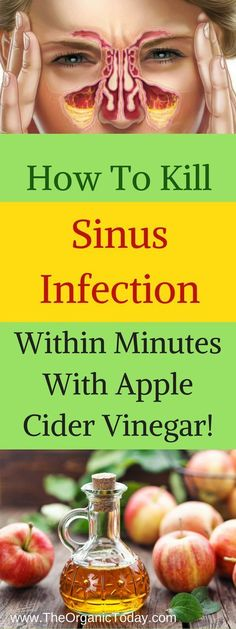 Sinus infection is characterized by headaches, fevers, thick mucus that causes a blockage, and pain in the face area and present inflammation of the tissue and membrane and. For sinusitis there are effective natural treatments, which cleanse the sinuses and destroy the microbes that caused the issue. For around three months chronic sinusitis lasts, but …