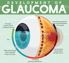 Infographic with Development of Untreated Glaucoma Disease