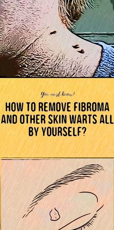 Fibromas are benign tumors of connective tissue  that  growths on the skin Health And Wellness Quotes, Health And Fitness Articles, Health Tips For Women, Health And Wellbeing, Health Fitness, Remedies For Nausea, Natural Remedies For Migraines, Natural Health Remedies, Fitness App