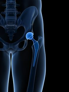 11 Best Hip Replacement images in 2017   Hip replacement